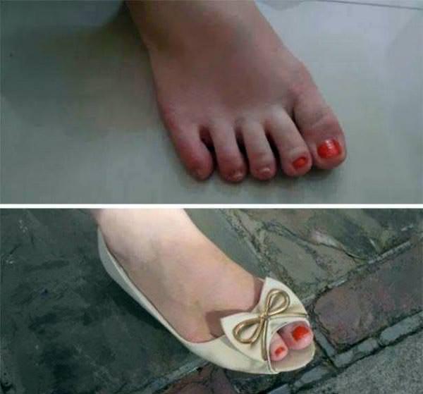 ayakkabı çöp